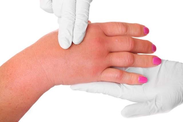 ماهي أعراض نقص السوائل في الجسم؟