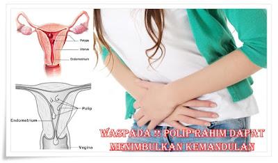 milagros untuk polip rahim
