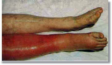 Deep Vein Thrombosis Homeopathic Treatment | Homeopathic