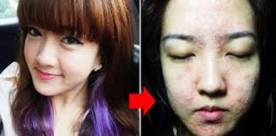 Akibat Kosmetik Abal-abal