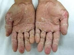 Lý do mắc bệnh da liễu chàm eczema tổ đỉa Hien%2Btuong%2Bkho%2Bda