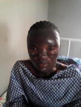 Pretty Nigerian model gets disfigured by cooking gas