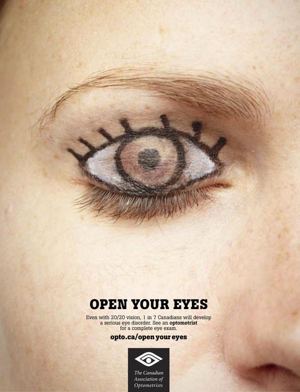 bruckner test ophthalmology