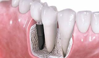 Trồng răng giả có đau không?