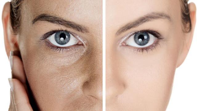 kecilkan pori muka, hilang pori di muka, hilangkan pori terbuka, cure large pores, smaller pores
