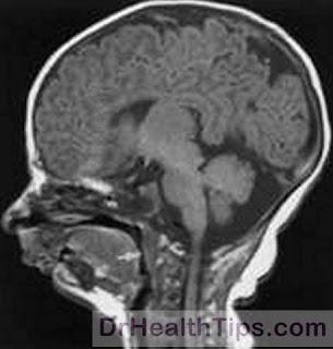 Skull radiology in Micrognathia