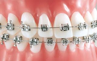 Brackets de autoligado o baja fricción Ortodoncia