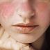 Apa Itu Penyakit Autoimun? dan Jenis dan Gejala Penyakit Autoimun