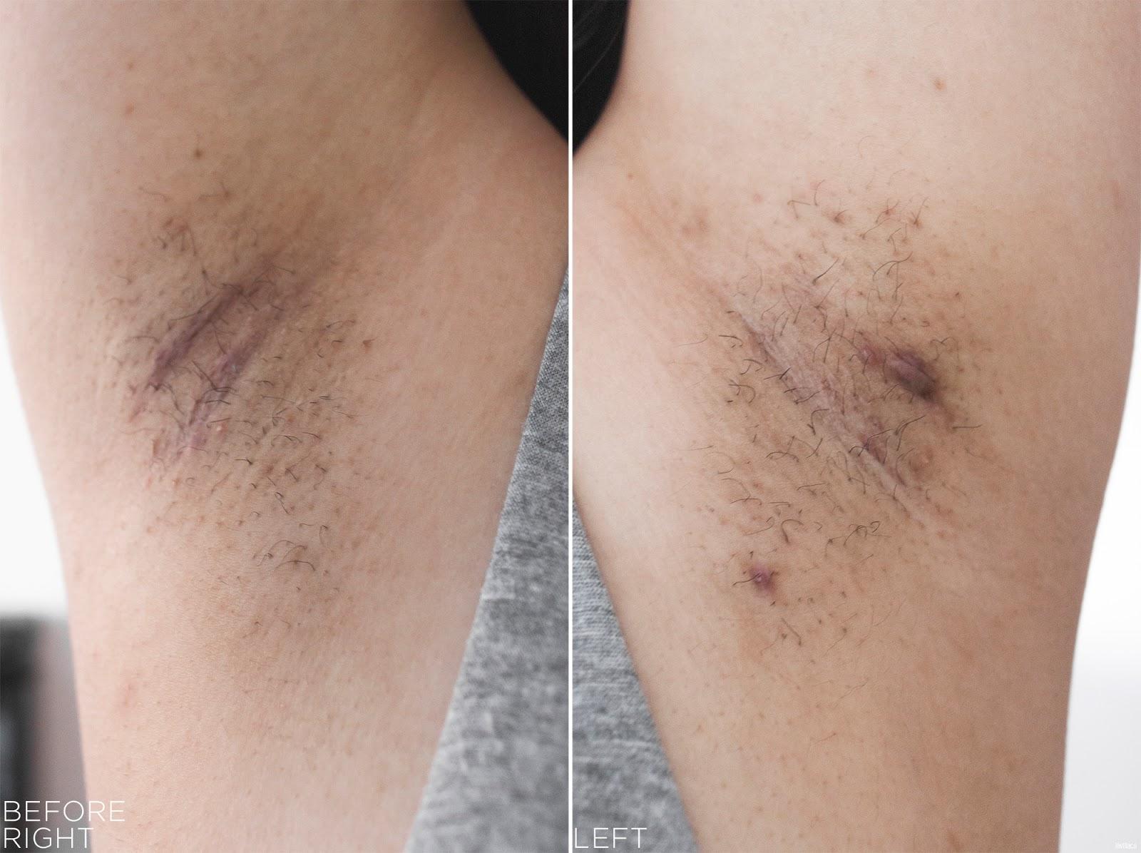 tria Hair Removal Laser Armpits Hair Before
