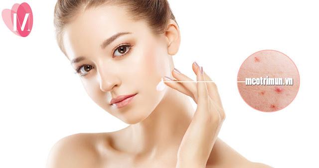 Nguyên nhân và cách trị sẹo mụn lâu năm