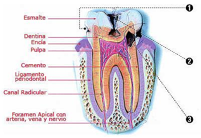 Dibujo de la caries dental indicando partes a color