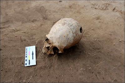 un cráneo con traumas de una cirugìa cerebral
