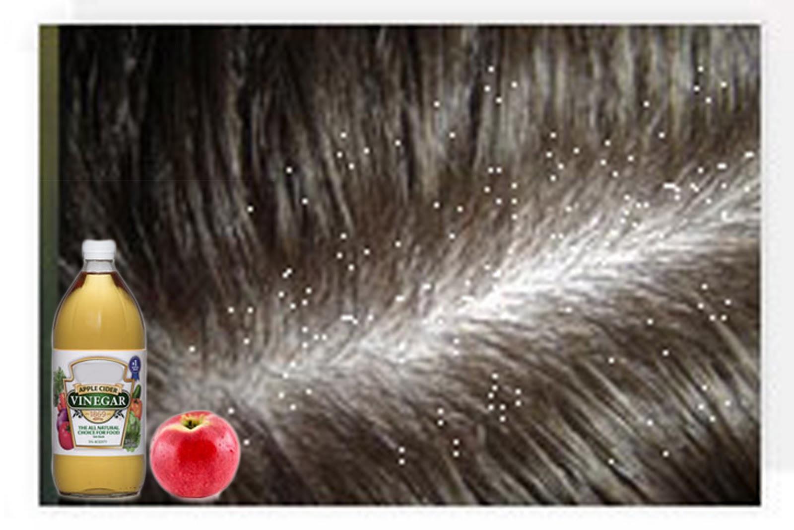 Overcoming Diseases Dandruff Problem Then Use Apple Cider Vinegar