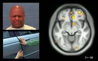 ¿Cómo funciona el cerebro de un psicópata?