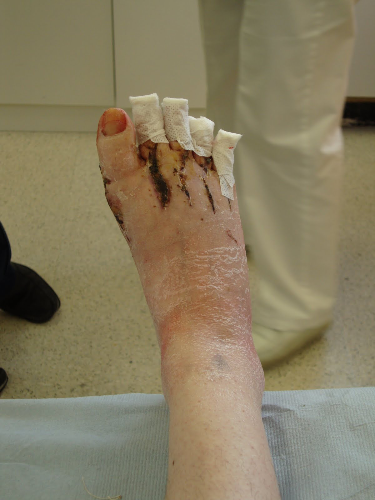 Gwen's Feet (and Hand): K-Wire Removal