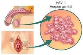 Foto Obat Yang Manjur Penyakit Herpes Simplex
