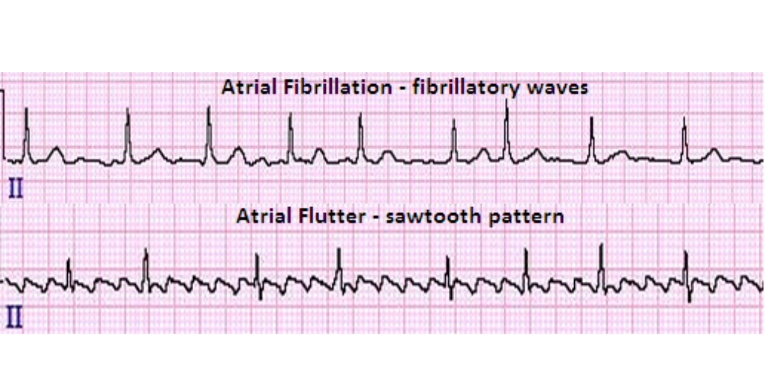 relationship between hypertension and atrial fibrillation