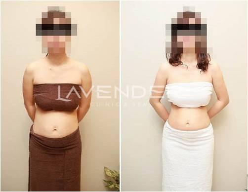 giảm béo contri lipo