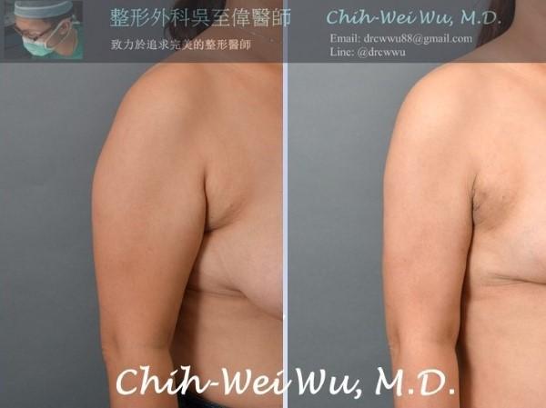 手臂抽脂與副乳抽脂:透過SAFELipo,可以完整雕塑手臂曲線