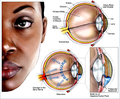 African Americans With Glaucoma
