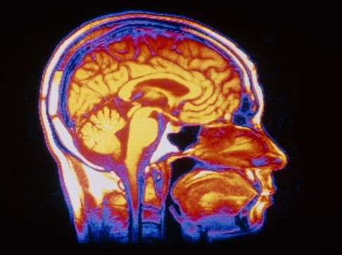 What You Should Know About Raised Intracranial Pressure