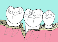 "<Imgsrc =""Esquema-bolsa-periodontal.jpg"" width = ""200"" height ""144"" border = ""0"" alt = ""Ilustración de una bolsa periodontal ."">"