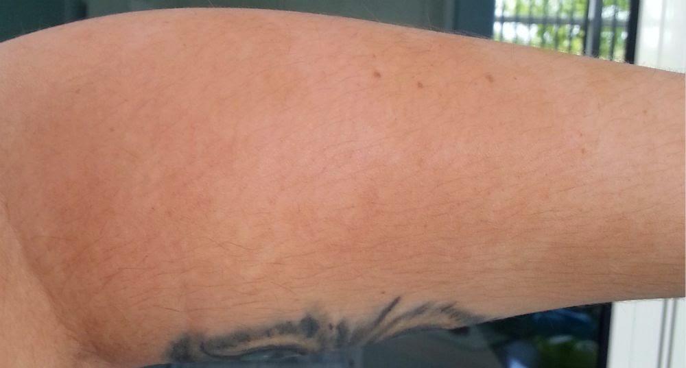 Les taches de pigment sur le corps le traitement de la raison de lapparition
