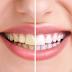 الاسباب الرئيسية التي تؤدي الى تغيير لون الأسنان هي