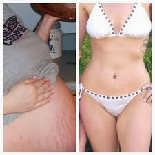 942b6598aa Loose skin occurs after pregnancy, aging, extreme or fast weight loss and  demands solutions that are effective.