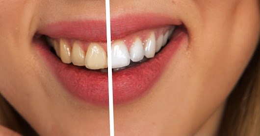 How to whiten teath at home naturally