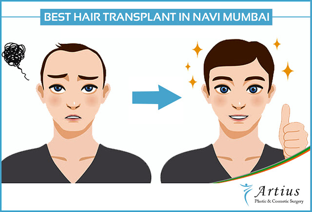 Hair Transplant in Mumbai
