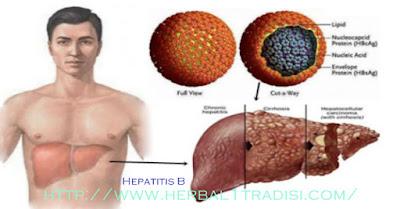 Cara Pengobatan Hepatitis B