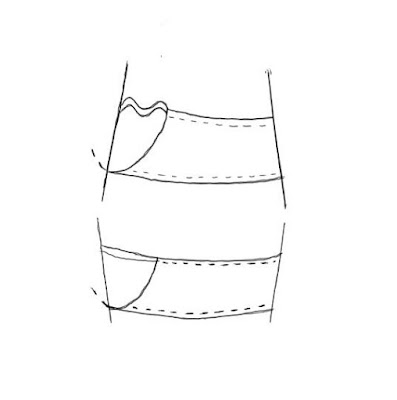 Diagram showing cup wrinkles on an A shaped ribcage and none on a V shaped ribcage
