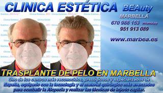 injertos capilar MARBELLA Clínica Estética  {implante|injertos|trasplante} {pelo|capilar|cabello} {para mujeres |mujeres } {o|or|y} {para hombres|hombres} {o|or|y} {en Marbella|Marbella} y {en Málaga|Málaga}: Te {ofrecemos|proponemos} la {mayor|alta} calidad de {servicios|nuestroservicio} con los mejores