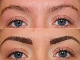 hair transplant eyebow