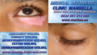 TRATAMIENTO PARA EL VITILIGO clínica estética micropigmentación propone Vitiligo Cura