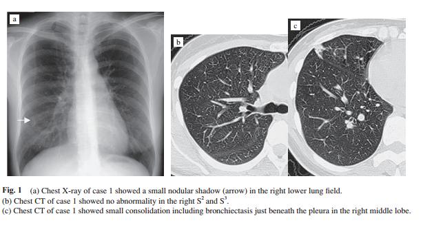家庭医・総合診療医の自己学習録: 肺MAC症の画像所見