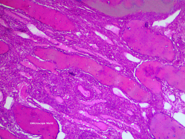 Image of an Ovary under a lab microscope at 100x magnification.