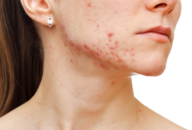 Adult Acne - Causes, and Best Treatments