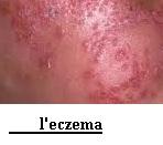 Comment guérir  l'eczéma et dermatite