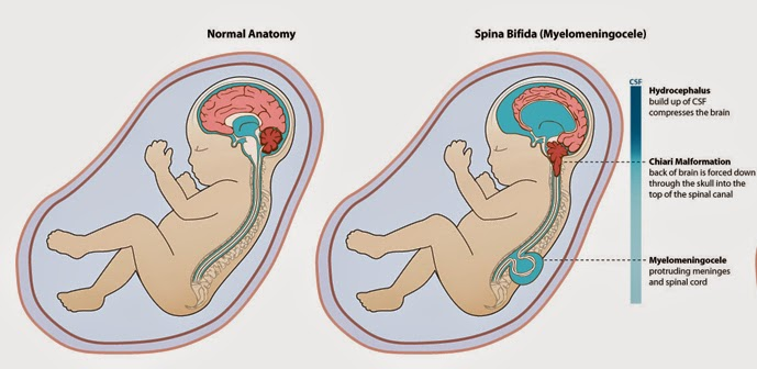 a study of the causes and effects of down syndrome and spina bifida Spina bifida can occur anywhere along the backbone, but is most often found in the small of the back or further down what are the types of spina bifida.
