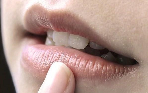 Cara Ampuh Atasi Bibir Berwarna Gelap