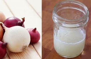 La recette de jus d'oignon pour contrôler la chute de cheveux