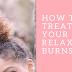 Has Relaxer Burnt Your Hair ? Here's How To Treat Relaxer Burns