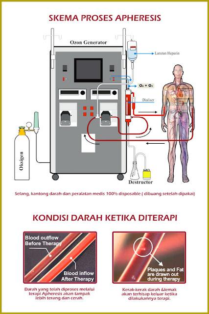 mengatasi diabetes dengan terapi ozon