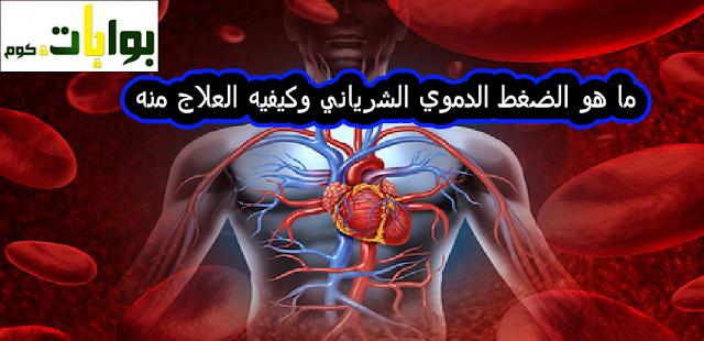 ما هو الضغط الدموي الشرياني وكيفيه العلاج منه