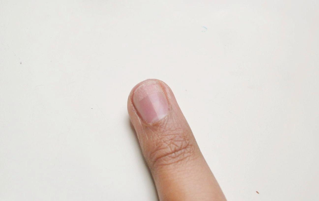 fingernagel eingerissen reparieren