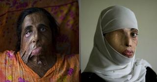 Το όχι της γυναίκας σε πρόταση γάμου στο Πακιστάν δεν είναι Επιλογή – Αυτές είναι οι συνέπειες