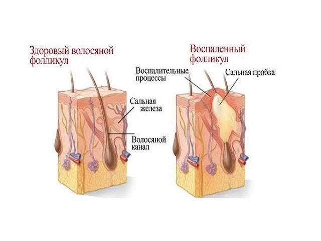 антибиотики при демодекозе на лице