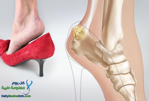 082bb18a8291a يقول احدي اطباء القدم ان ارتداء الاحذيه ذو الكعب فائع الارتفاع قد تؤدي الي  العديد من المشاكل بدايه من التواء الكاحل حتي الالام المزمنه